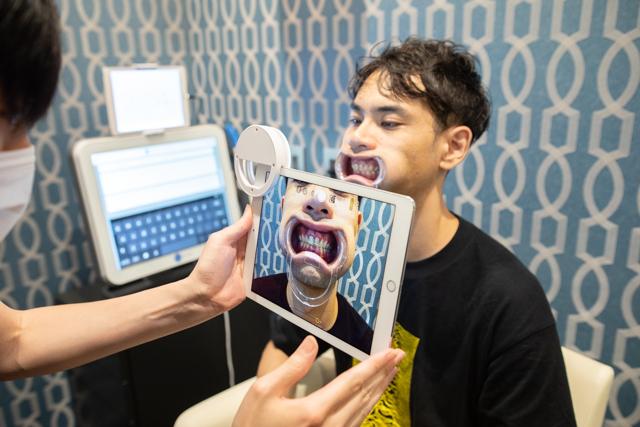 【自宅でできるオンライン歯科矯正】歯並びの写真撮影